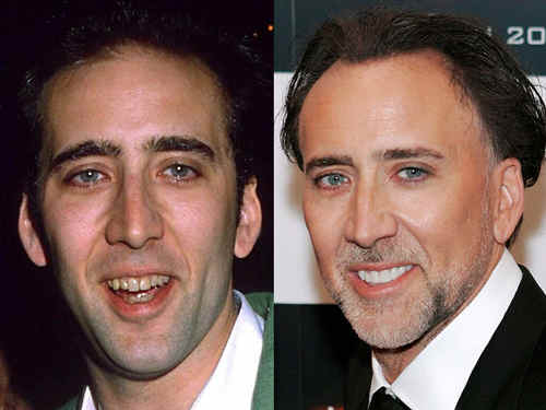 Хотите голливудскую улыбку Медицинская процедура зубной имплантации ответ на все вопросы фото звезд шоу бизнеса